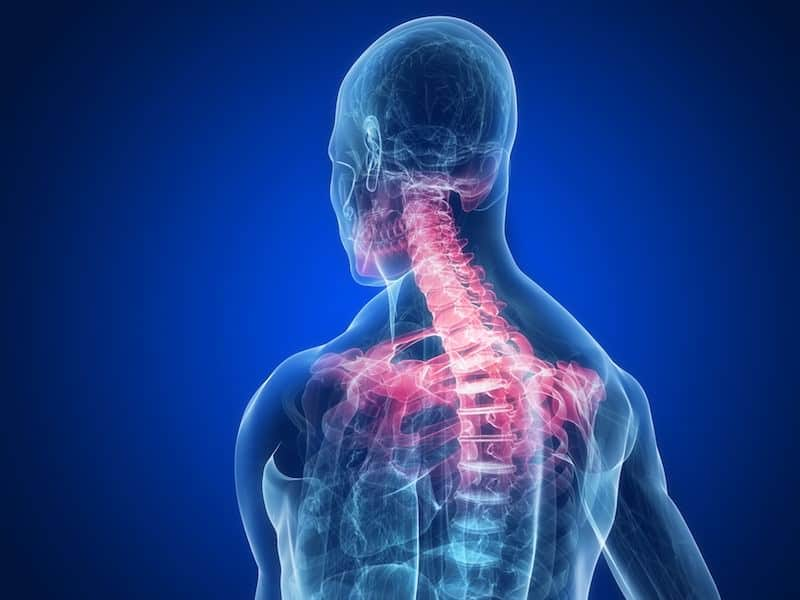 anatomia dor no pescoco cervicalgia