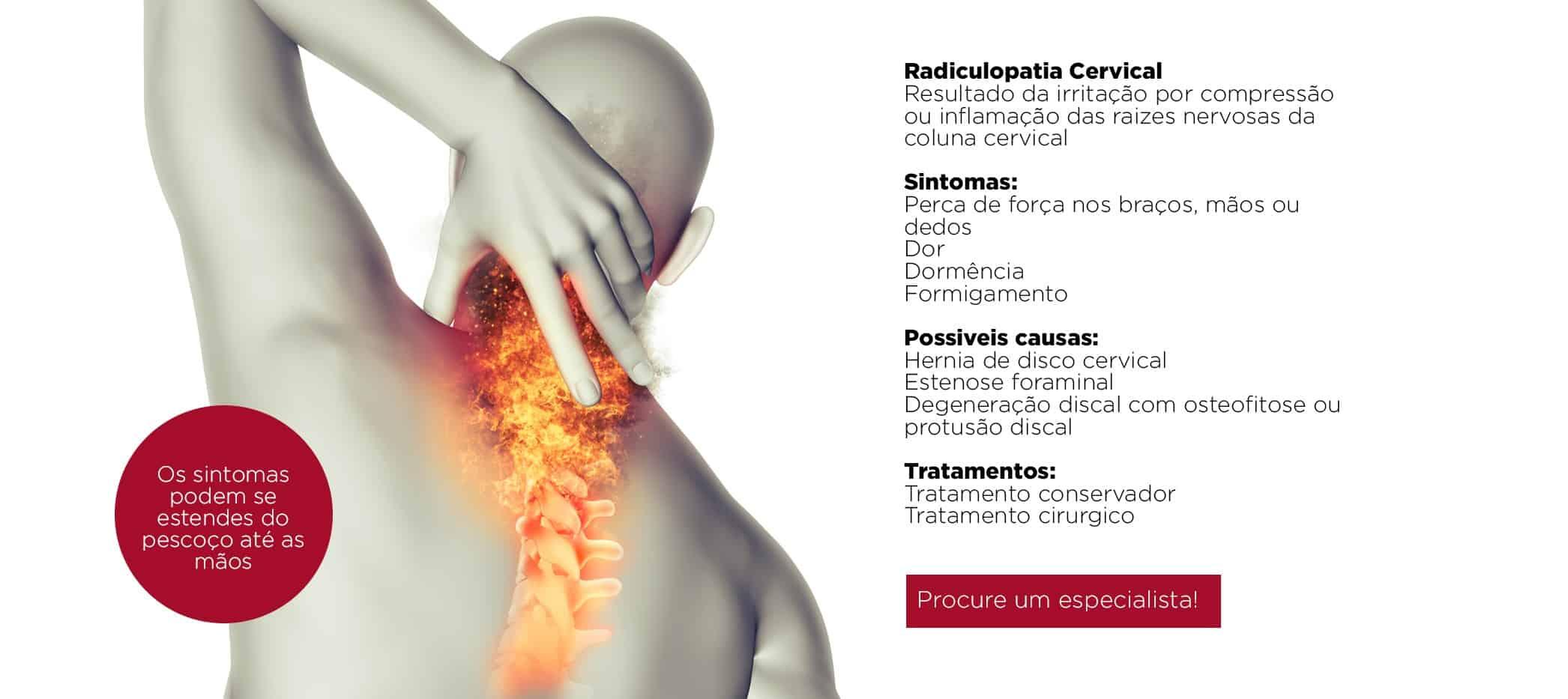 Os principais sintomas de hérnia de disco cervical são dor no pescoço, sensação de formigamento e de dormência, e fraqueza muscular.